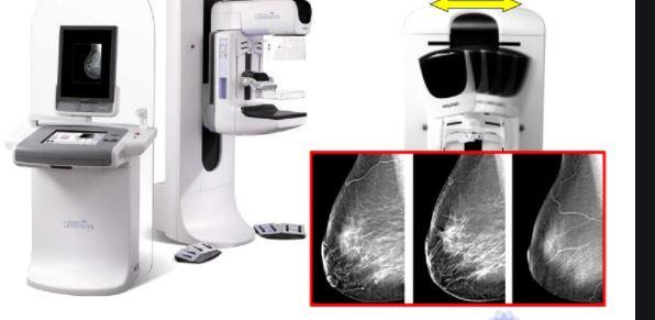Mammografia na miejscu w Krzywdzie  Zrób prześwietlenie piersi. - Zdjęcie główne